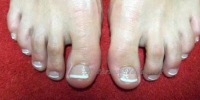 Frenchfootnails-White